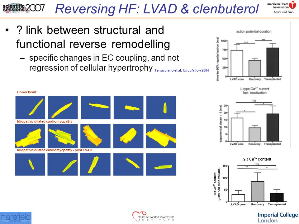 Reversing HF: LVAD & clenbuterol SR Ca 2+ content Donor heart Idiopathic dilated cardiomyopathy Idiopathic dilated cardiomyopathy - post LVAD .