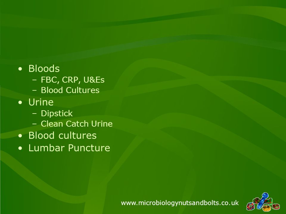 www.microbiologynutsandbolts.co.uk Bloods –FBC, CRP, U&Es –Blood Cultures Urine –Dipstick –Clean Catch Urine Blood cultures Lumbar Puncture