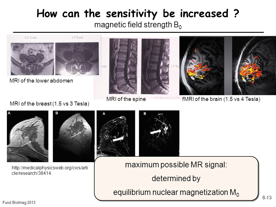 Fund BioImag 2013 8-13 How can the sensitivity be increased ? magnetic field strength B 0 http://medicalphysicsweb.org/cws/arti cle/research/38414 MRI