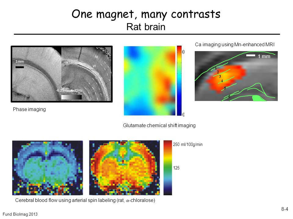 Fund BioImag 2013 8-4 1 2 3 4 5 6 1 mm Ca imaging using Mn-enhanced MRI Glutamate chemical shift imaging Phase imaging 1mm -6.25Hz 6.25Hz IV VI Cerebral blood flow using arterial spin labeling (rat,  -chloralose) 250 ml/100g/min 125 One magnet, many contrasts Rat brain