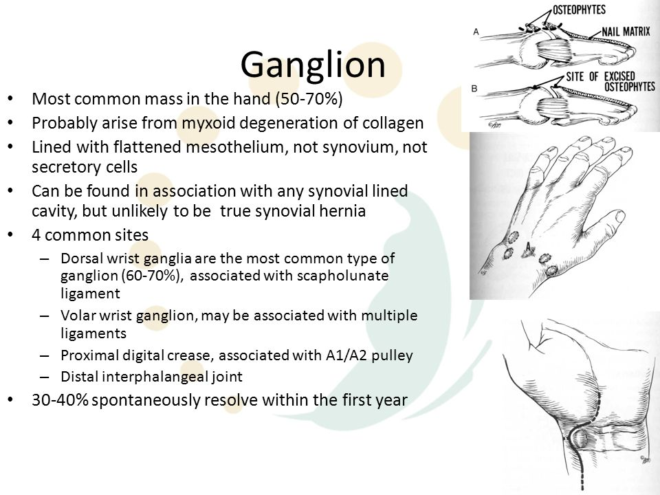 Ganglion Most common mass in the hand (50-70%) Probably arise from myxoid degeneration of collagen Lined with flattened mesothelium, not synovium, not secretory cells Can be found in association with any synovial lined cavity, but unlikely to be true synovial hernia 4 common sites – Dorsal wrist ganglia are the most common type of ganglion (60-70%), associated with scapholunate ligament – Volar wrist ganglion, may be associated with multiple ligaments – Proximal digital crease, associated with A1/A2 pulley – Distal interphalangeal joint 30-40% spontaneously resolve within the first year