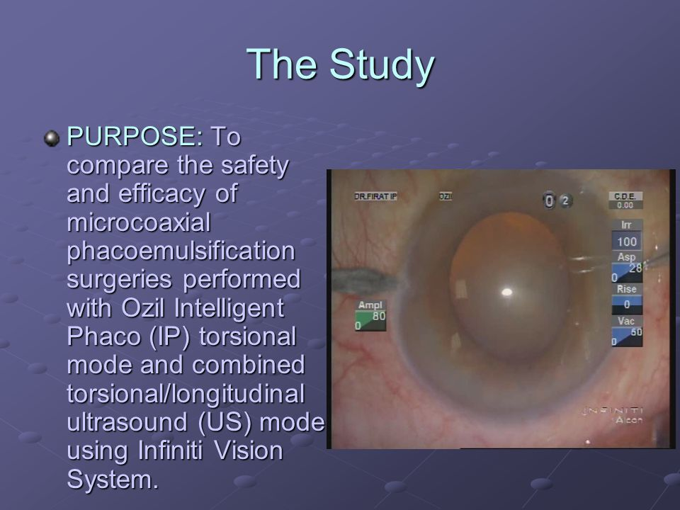 The Study PURPOSE: To compare the safety and efficacy of microcoaxial phacoemulsification surgeries performed with Ozil Intelligent Phaco (IP) torsional mode and combined torsional/longitudinal ultrasound (US) mode using Infiniti Vision System.