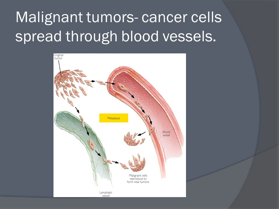 Malignant tumors- cancer cells spread through blood vessels.