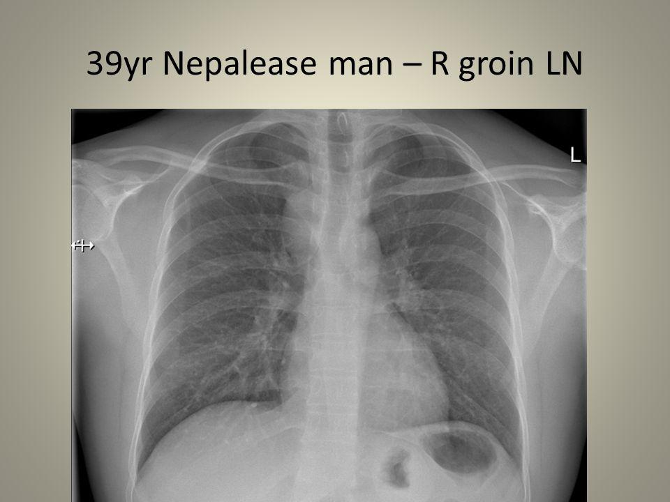 39yr Nepalease man – R groin LN