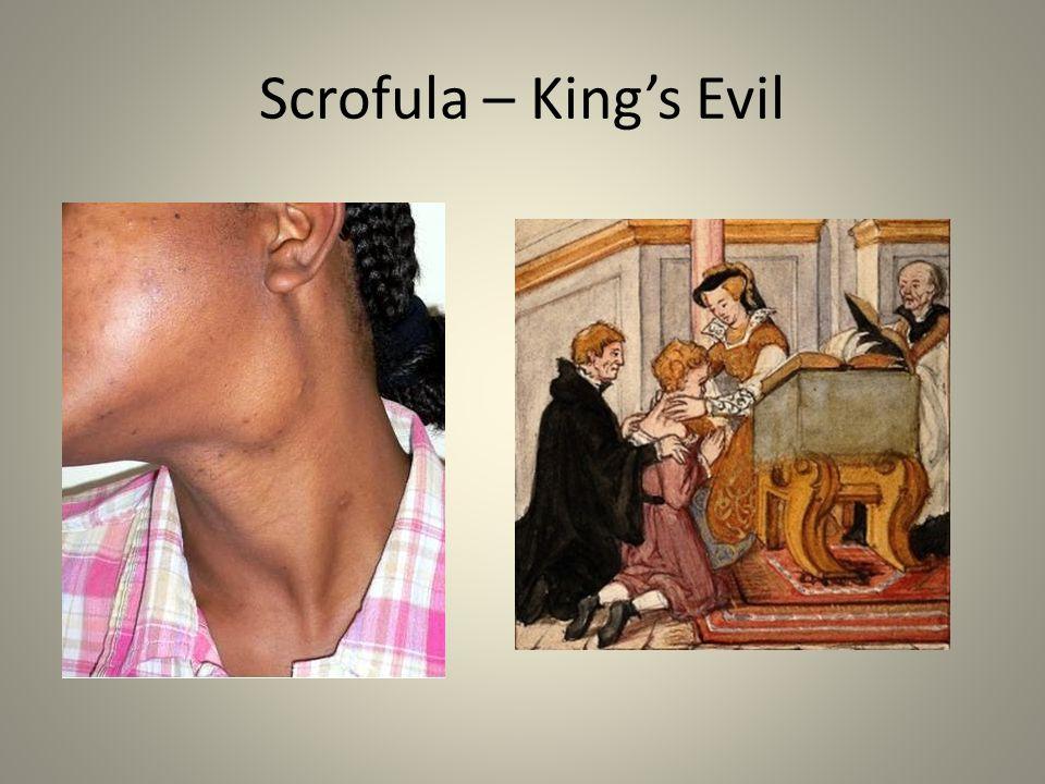 Scrofula – King's Evil