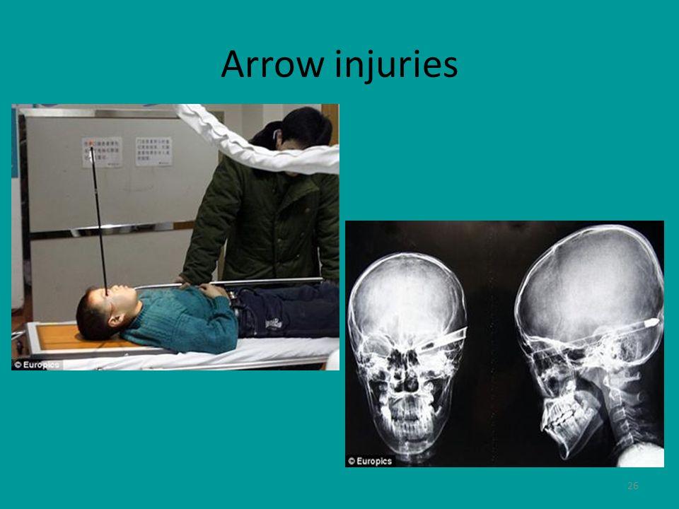 26 Arrow injuries