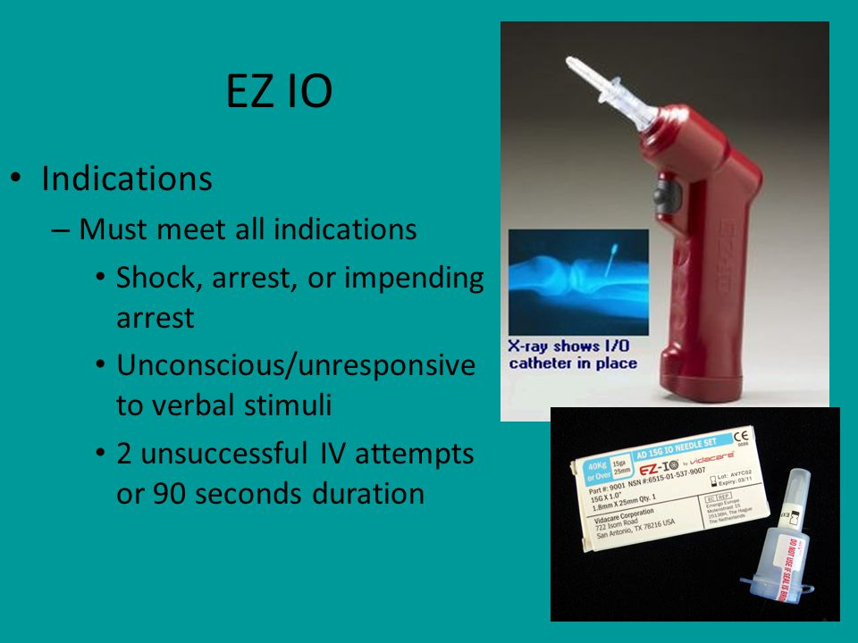 73 EZ IO Indications – Must meet all indications Shock, arrest, or impending arrest Unconscious/unresponsive to verbal stimuli 2 unsuccessful IV attempts or 90 seconds duration