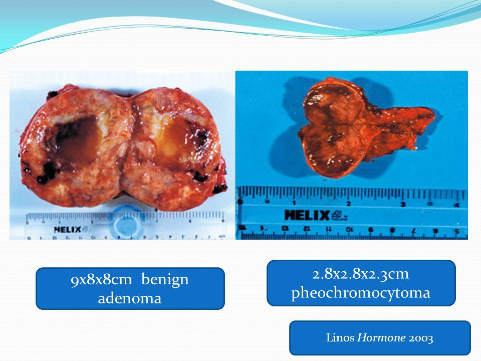 Linos Hormone 2003 9x8x8cm benign adenoma 2.8x2.8x2.3cm pheochromocytoma