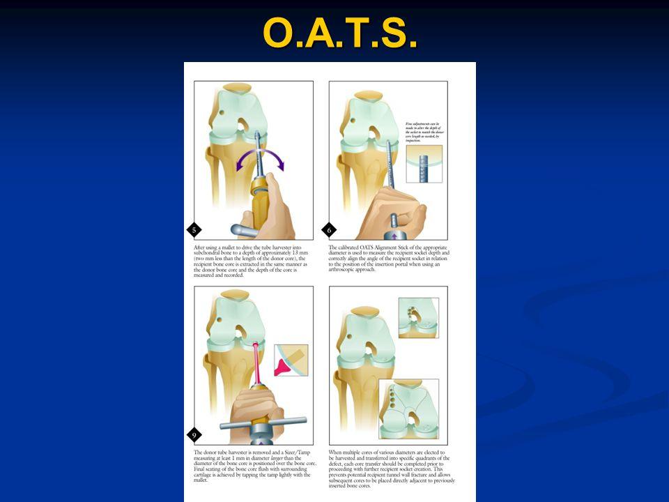 O.A.T.S.
