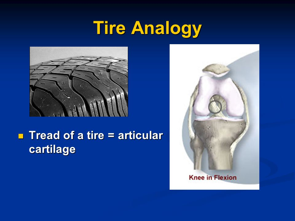 Tire Analogy Tread of a tire = articular cartilage
