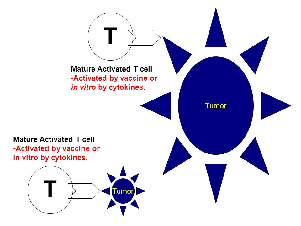 Tumor T Mature Activated T cell -Activated by vaccine or in vitro by cytokines.