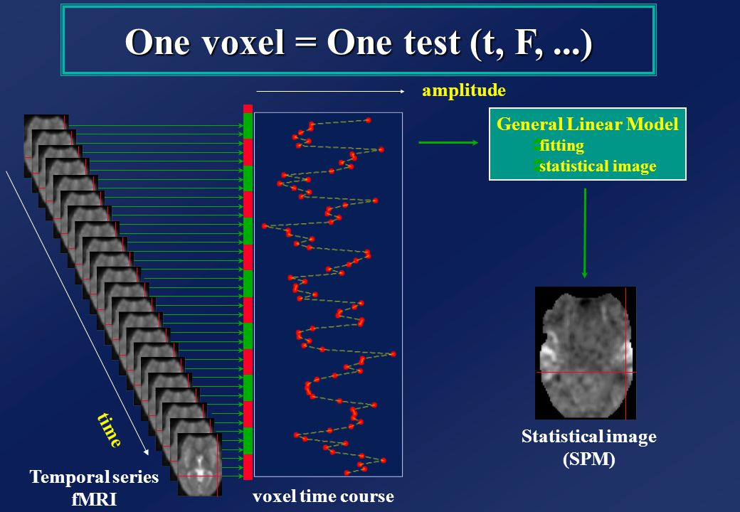 Temporal series fMRI Statistical image (SPM) voxel time course One voxel = One test (t, F,...) amplitude time General Linear Model Üfitting Üstatistical image