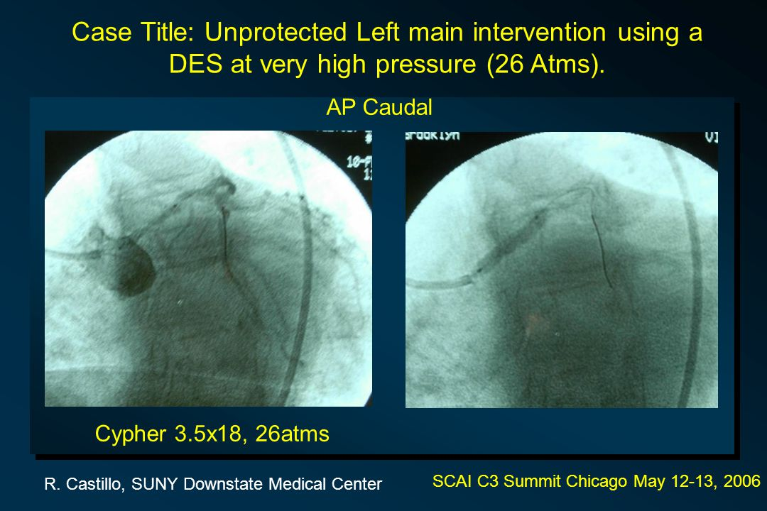 SCAI C3 Summit Chicago May 12-13, 2006 Case Title: Unprotected Left main intervention using a DES at very high pressure (26 Atms).