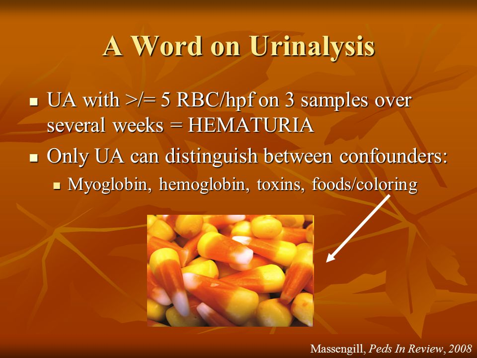 A Word on Urinalysis UA with >/= 5 RBC/hpf on 3 samples over several weeks = HEMATURIA UA with >/= 5 RBC/hpf on 3 samples over several weeks = HEMATUR