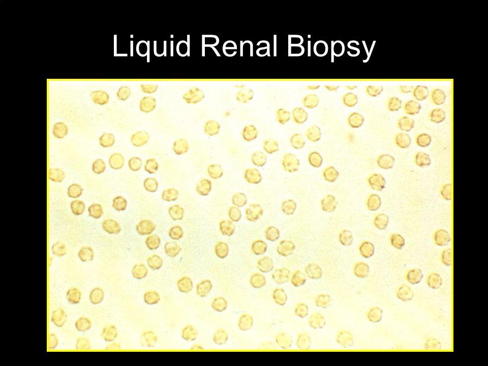 Urine Sediment Analysis G4 cell
