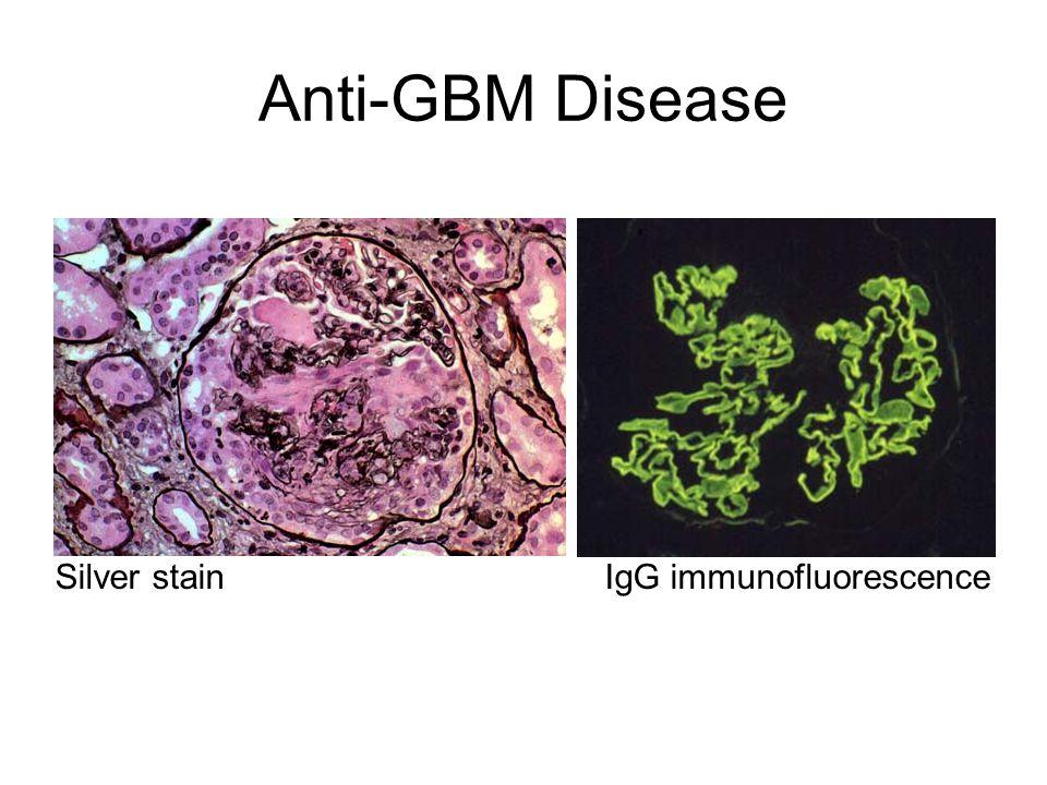 Anti-GBM Disease Silver stainIgG immunofluorescence