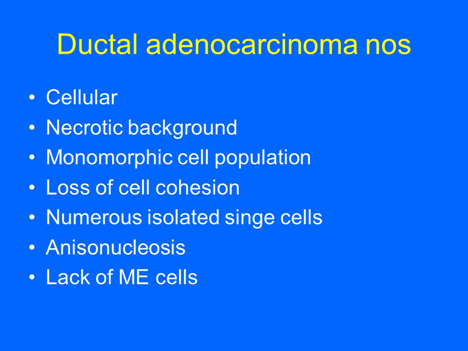 Ductal adenocarcinoma nos Cellular Necrotic background Monomorphic cell population Loss of cell cohesion Numerous isolated singe cells Anisonucleosis