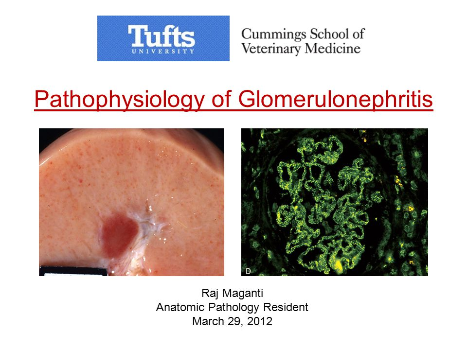 Pathophysiology of Glomerulonephritis Raj Maganti Anatomic Pathology Resident March 29, 2012