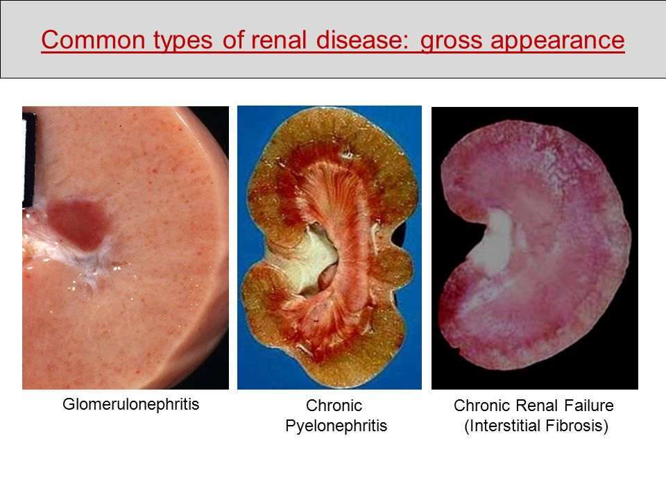 Glomerulonephritis Chronic Pyelonephritis Chronic Renal Failure (Interstitial Fibrosis) Common types of renal disease: gross appearance