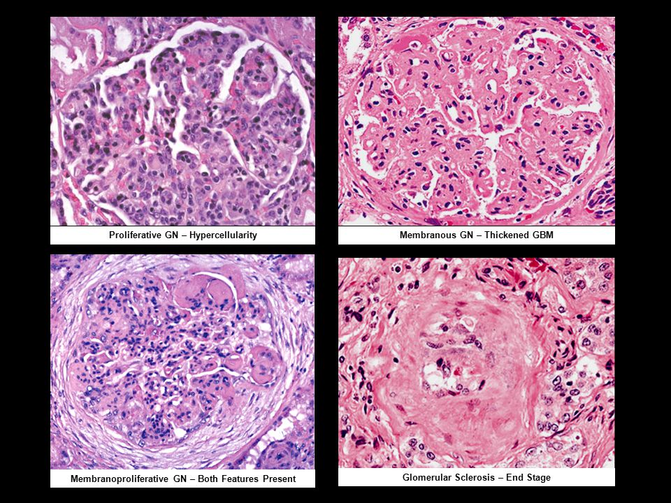 Proliferative GN – HypercellularityMembranous GN – Thickened GBM Membranoproliferative GN – Both Features Present Glomerular Sclerosis – End Stage