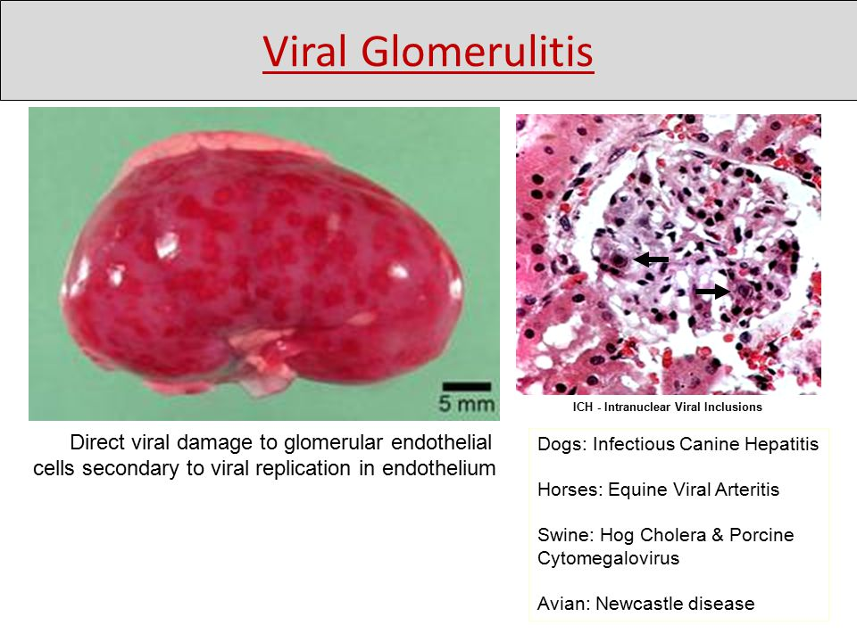 Dogs: Infectious Canine Hepatitis Horses: Equine Viral Arteritis Swine: Hog Cholera & Porcine Cytomegalovirus Avian: Newcastle disease Direct viral damage to glomerular endothelial cells secondary to viral replication in endothelium ICH - Intranuclear Viral Inclusions Viral Glomerulitis