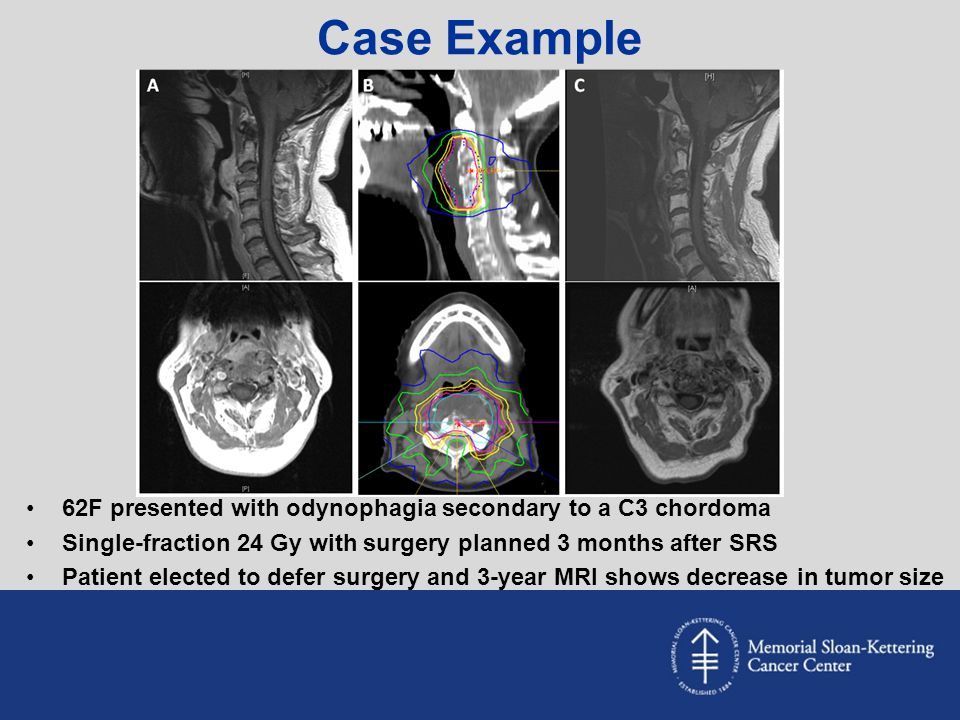 Case Example 62F presented with odynophagia secondary to a C3 chordoma Single-fraction 24 Gy with surgery planned 3 months after SRS Patient elected t
