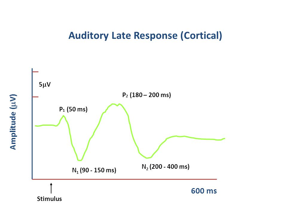 Auditory Late Response (Cortical) 600 ms P 2 (180 – 200 ms) Amplitude (  V) N 2 (200 - 400 ms) N 1 (90 - 150 ms) P 1 (50 ms) 5V 5V Stimulus