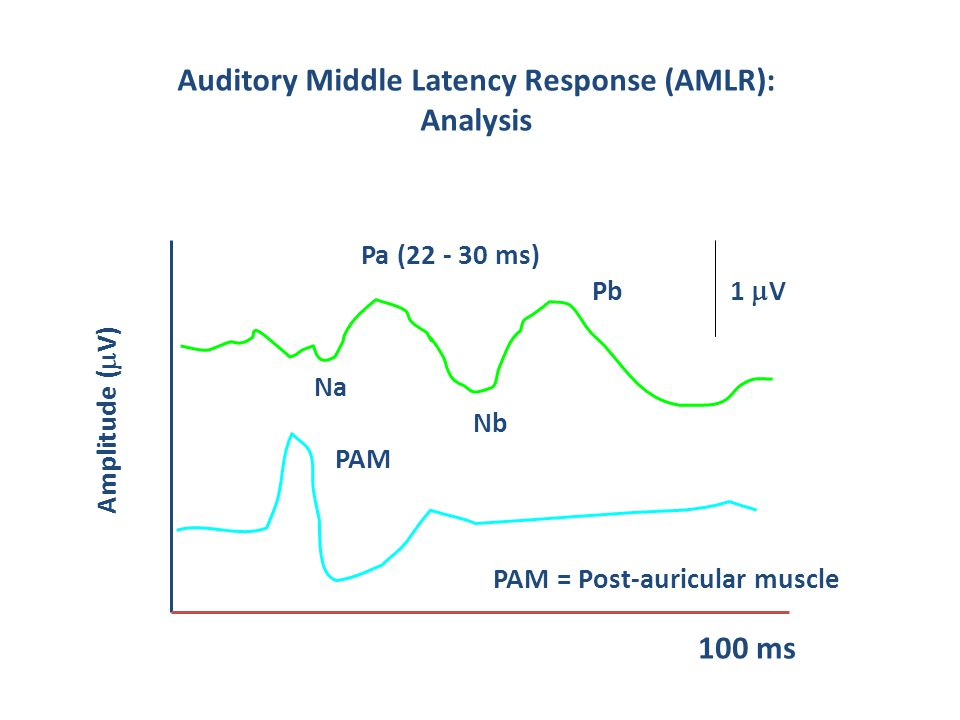 Auditory Middle Latency Response (AMLR): Analysis 100 ms PAM Pb Pa (22 - 30 ms) PAM = Post-auricular muscle Amplitude (  V) Nb Na 1  V