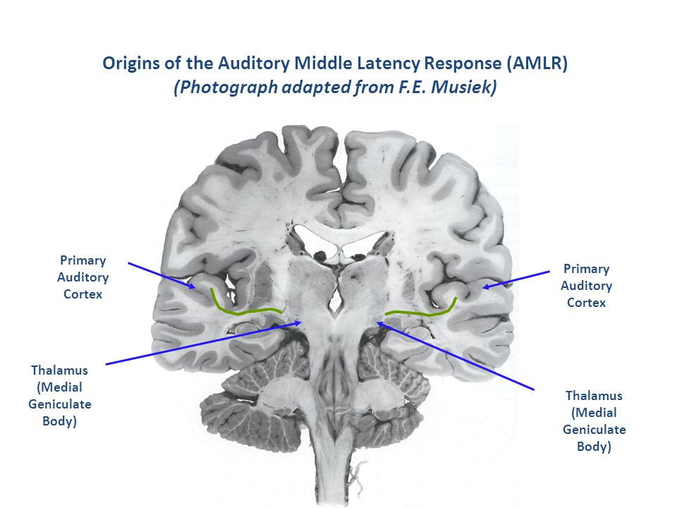 Origins of the Auditory Middle Latency Response (AMLR) (Photograph adapted from F.E.