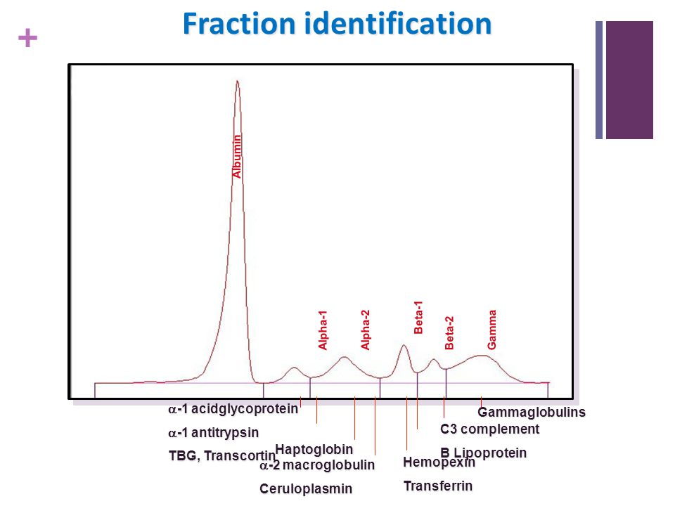 + Fraction identification Haptoglobin  -1 acidglycoprotein  -1 antitrypsin TBG, Transcortin  -2 macroglobulin Ceruloplasmin HemopexinTransferrin Al