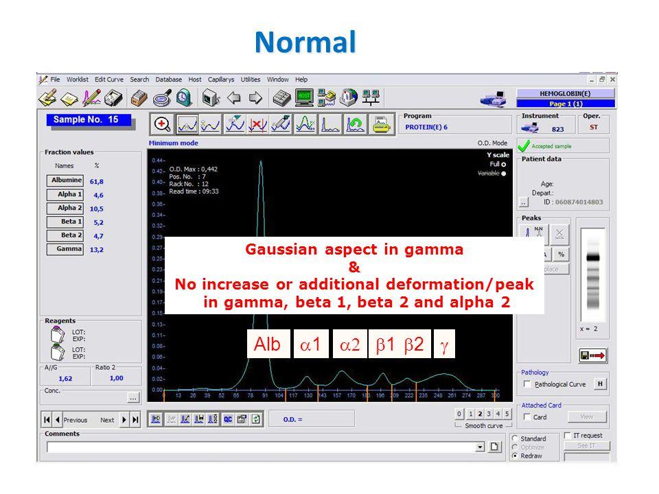 Normal Gaussian aspect in gamma & No increase or additional deformation/peak in gamma, beta 1, beta 2 and alpha 2 Alb 11  11 22 