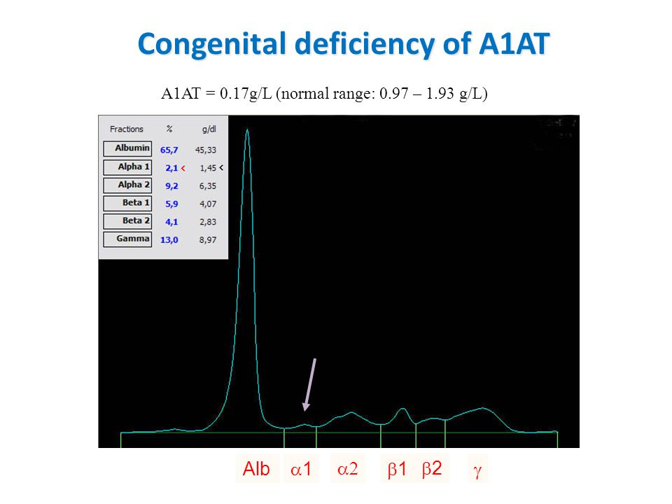 Congenital deficiency of A1AT A1AT = 0.17g/L (normal range: 0.97 – 1.93 g/L) Alb 11  11 22 