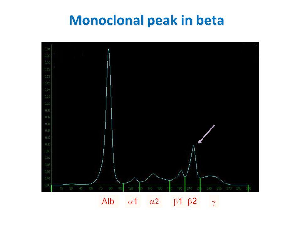 Monoclonal peak in beta Alb 11  11 22 
