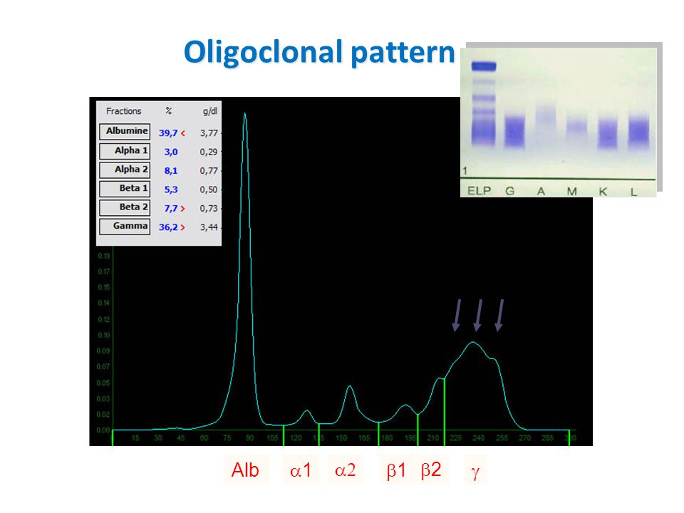 Oligoclonal pattern Alb 11  11 22 
