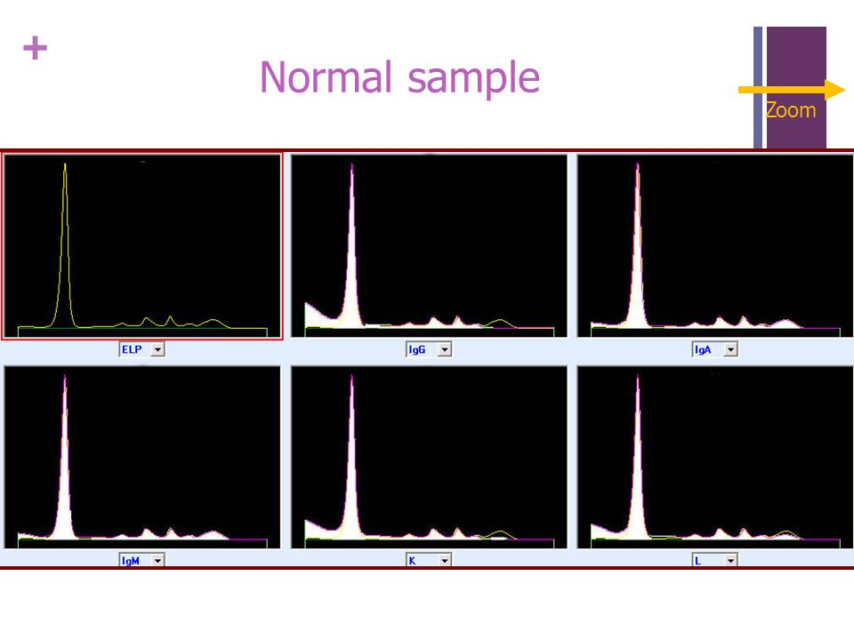 + Normal sample Zoom