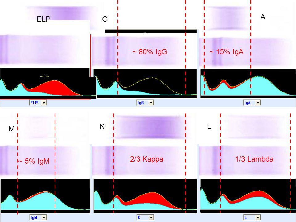 ~ 80% IgG~ 15% IgA ~ 5% IgM 2/3 Kappa1/3 Lambda ELPG A M KL
