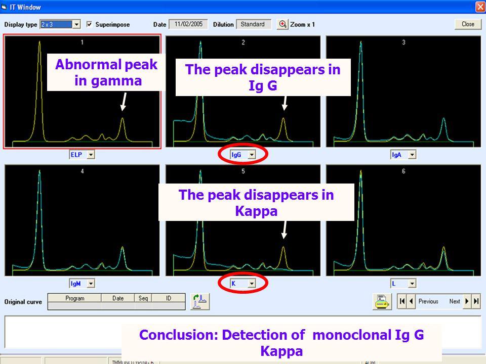 The peak disappears in Ig G The peak disappears in Kappa Conclusion: Detection of monoclonal Ig G Kappa Abnormal peak in gamma