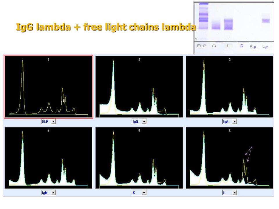 IgG lambda + free light chains lambda