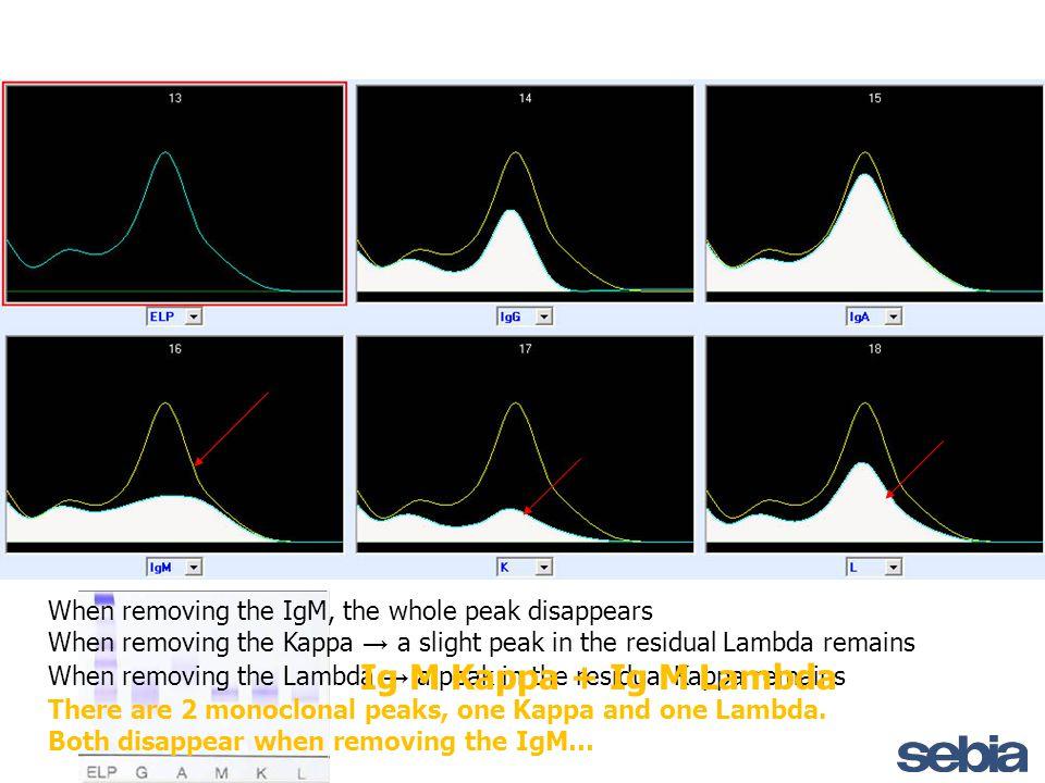 When removing the IgM, the whole peak disappears When removing the Kappa → a slight peak in the residual Lambda remains When removing the Lambda → a p