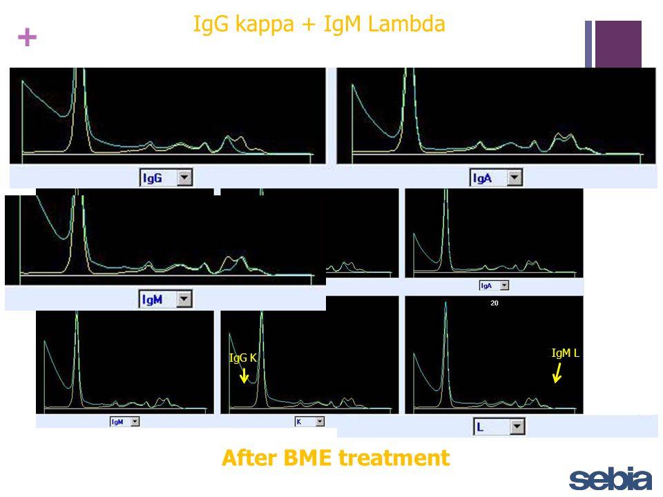 + IgG kappa + IgM Lambda After BME treatment IgM L IgG K