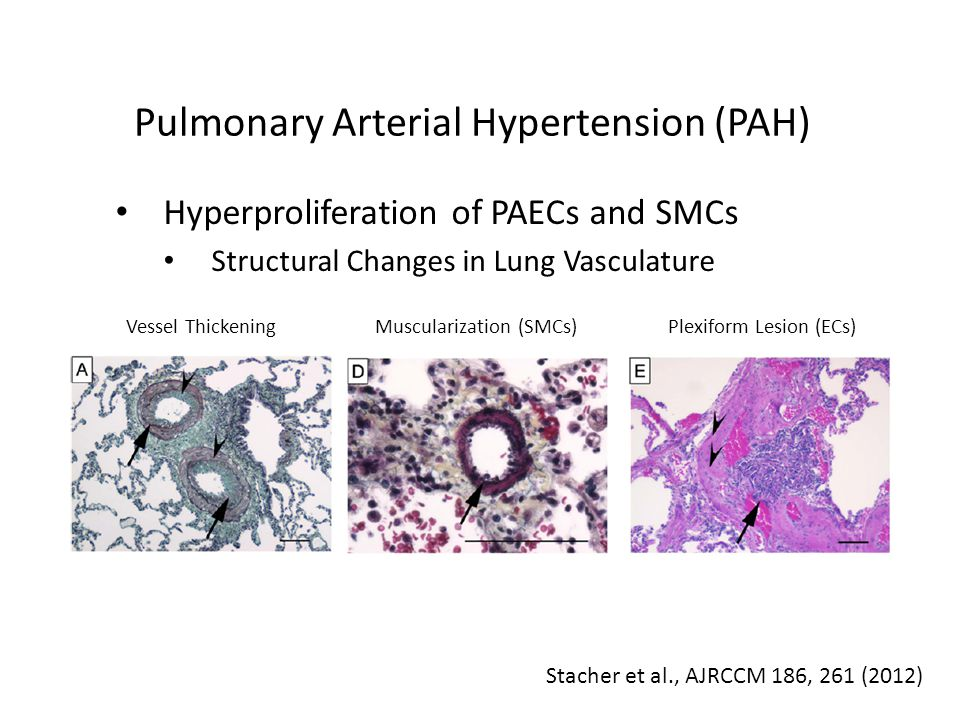 Pulmonary Arterial Hypertension (PAH) Hyperproliferation of PAECs and SMCs Structural Changes in Lung Vasculature Stacher et al., AJRCCM 186, 261 (2012) Vessel ThickeningMuscularization (SMCs)Plexiform Lesion (ECs)