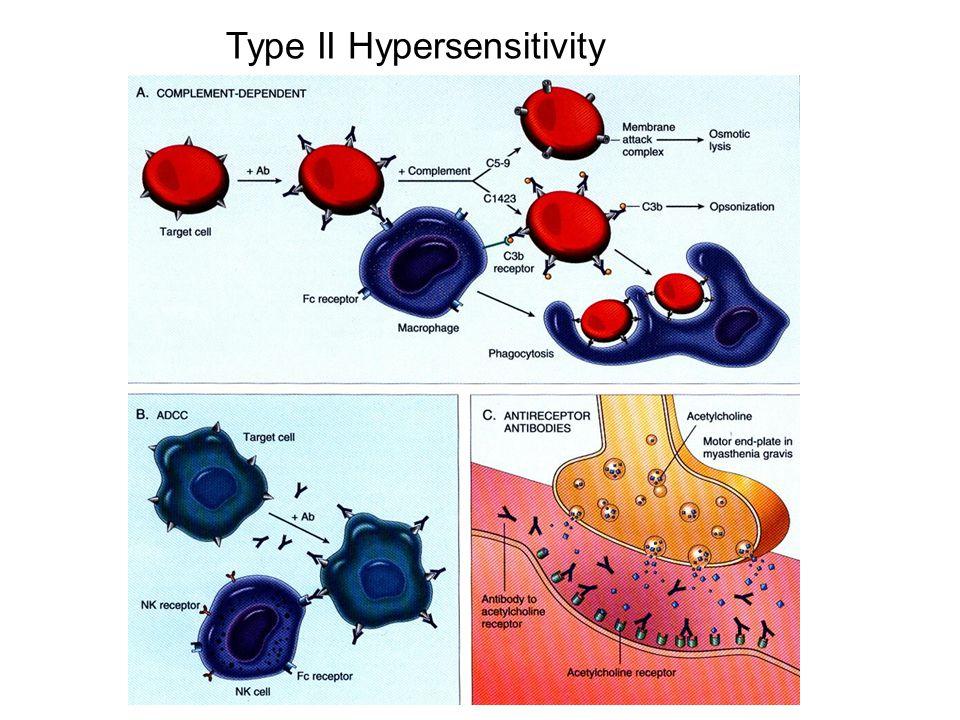 Type II Hypersensitivity