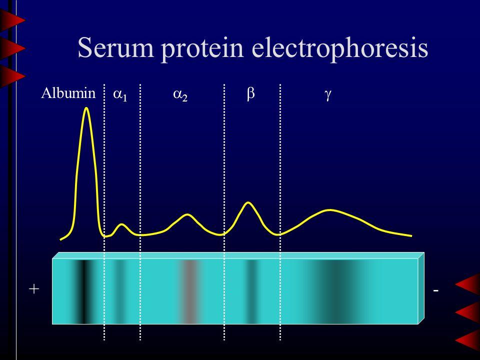 Serum protein electrophoresis +- Albumin 11 22 