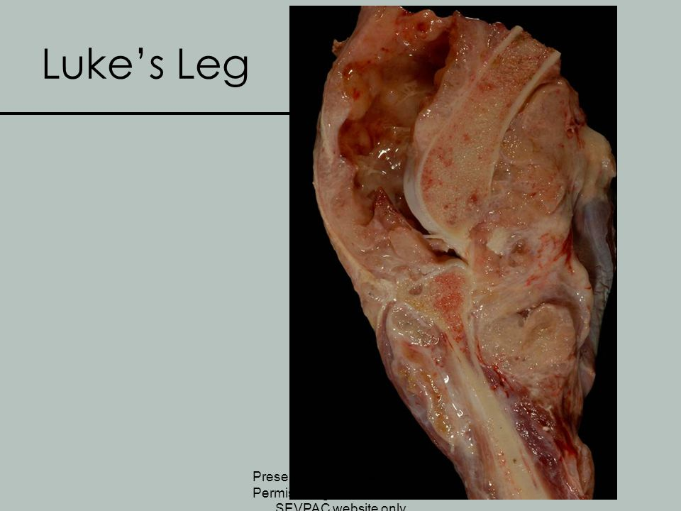 Luke's Leg Presented at SEVPAC 2008 – Permission granted for use on SEVPAC website only