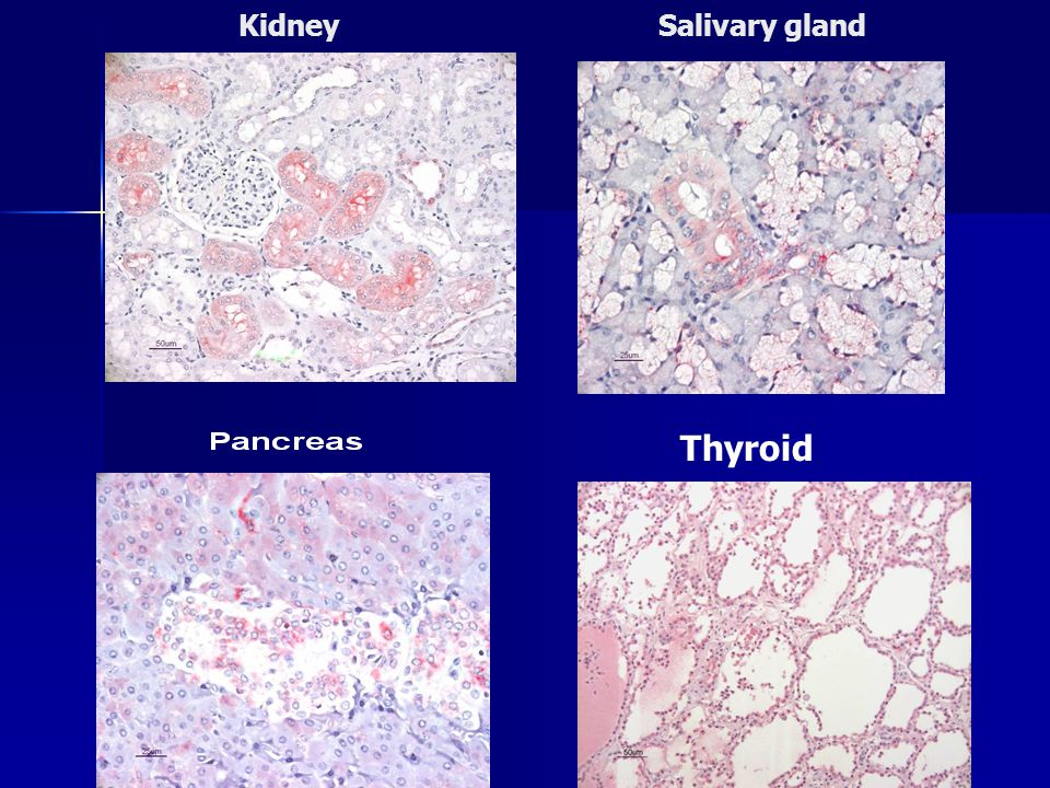 Kidney Salivary gland Thyroid