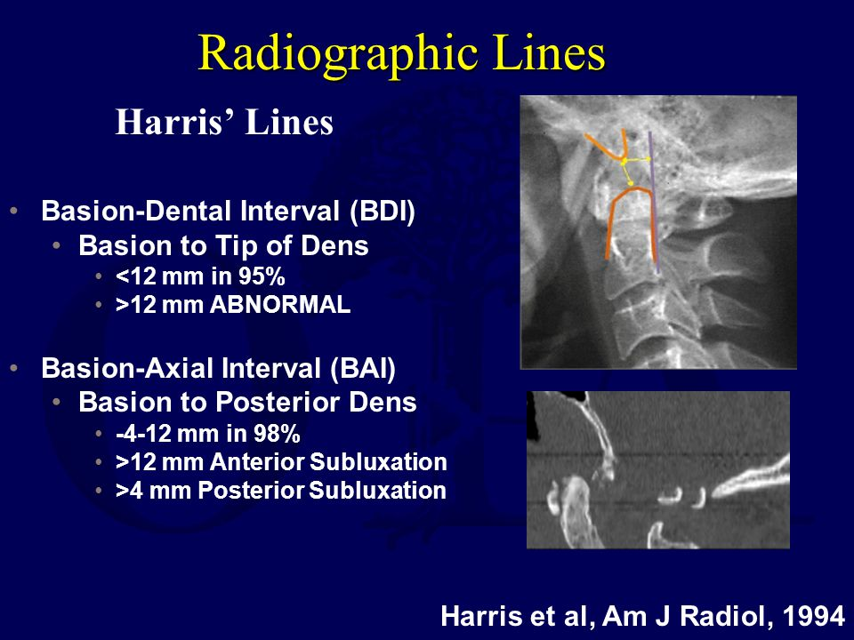 Radiographic Lines Harris et al, Am J Radiol, 1994 Basion-Dental Interval (BDI) Basion to Tip of Dens <12 mm in 95% >12 mm ABNORMAL Basion-Axial Inter