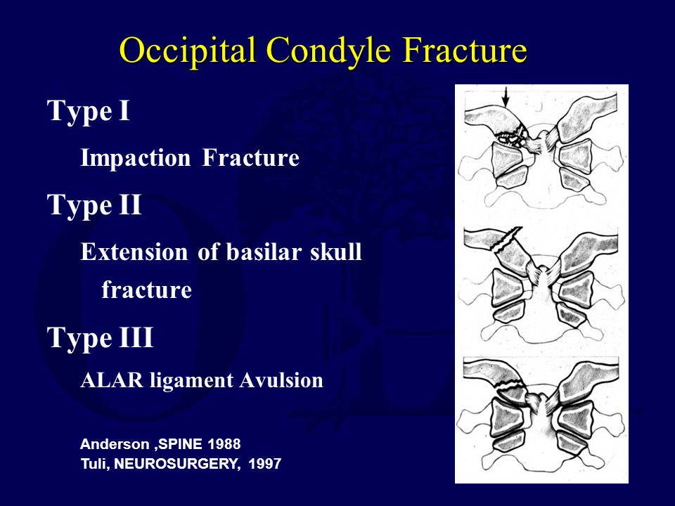 Occipital Condyle Fracture Type I Impaction Fracture Type II Extension of basilar skull fracture Type III ALAR ligament Avulsion Anderson,SPINE 1988 T