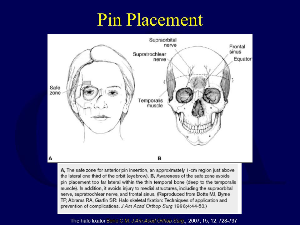 Pin Placement The halo fixator Bono,C.M. J.Am.Acad.Orthop.Surg., 2007, 15, 12, 728-737