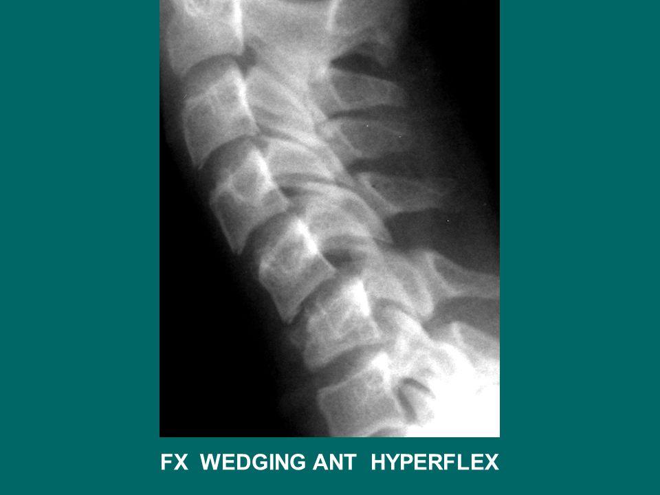 FX WEDGING ANT HYPERFLEX