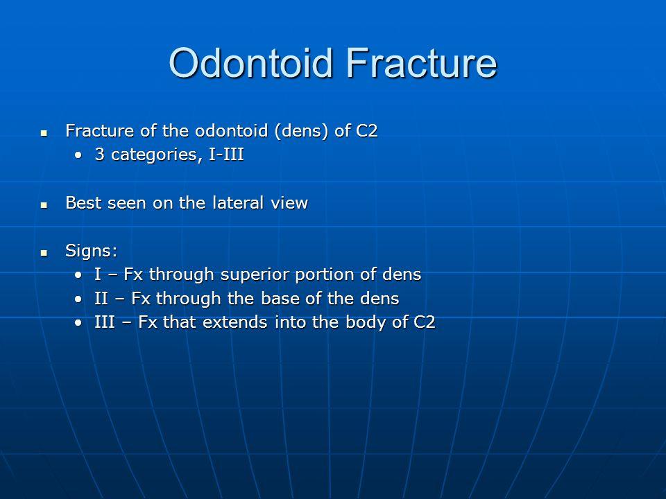 Odontoid Fracture Fracture of the odontoid (dens) of C2 Fracture of the odontoid (dens) of C2 3 categories, I-III3 categories, I-III Best seen on the